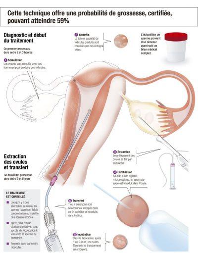 La fécondation in vitro avec vos propres ovules et le sperme d'un donneur, expliquée étape par étape